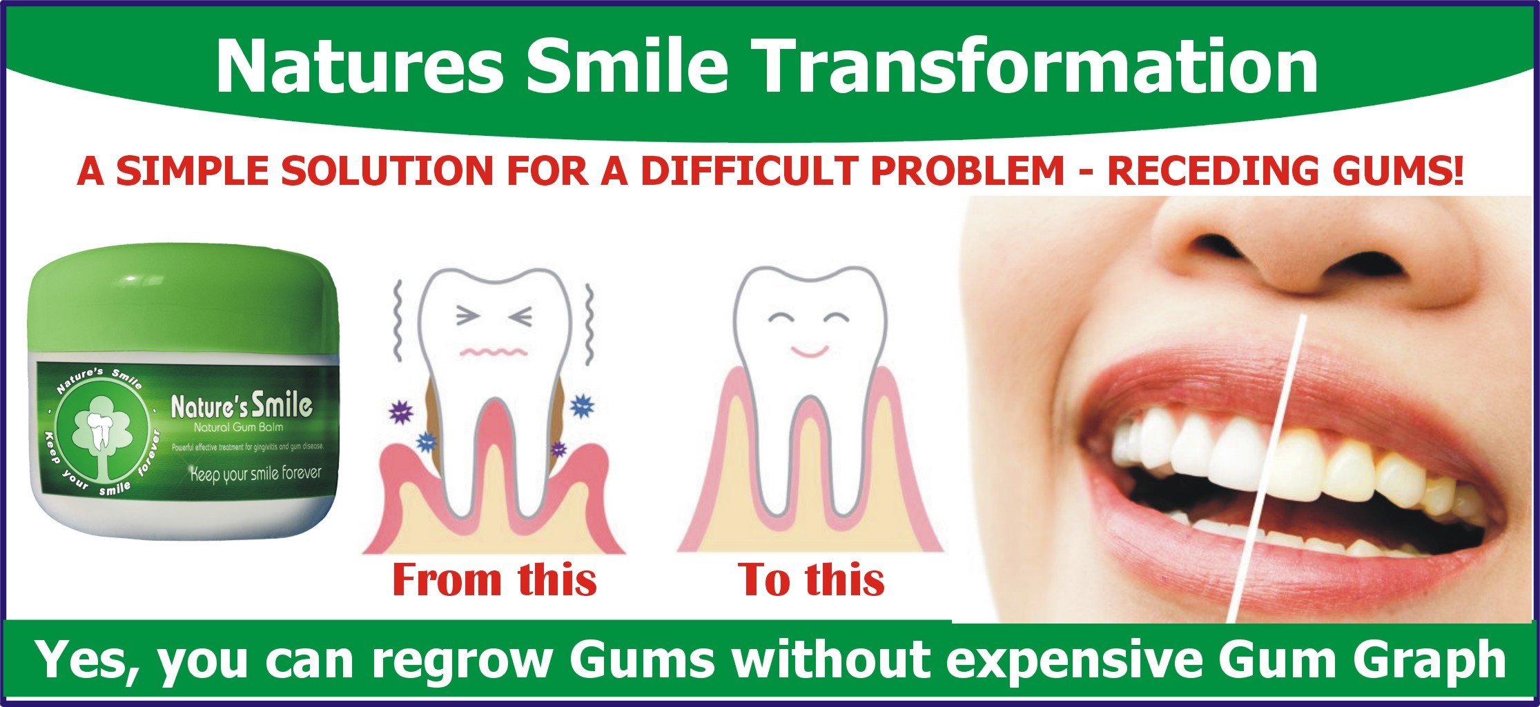 Receding gums Grow Back