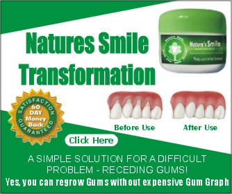 Best Treatment Options For Receding Gums